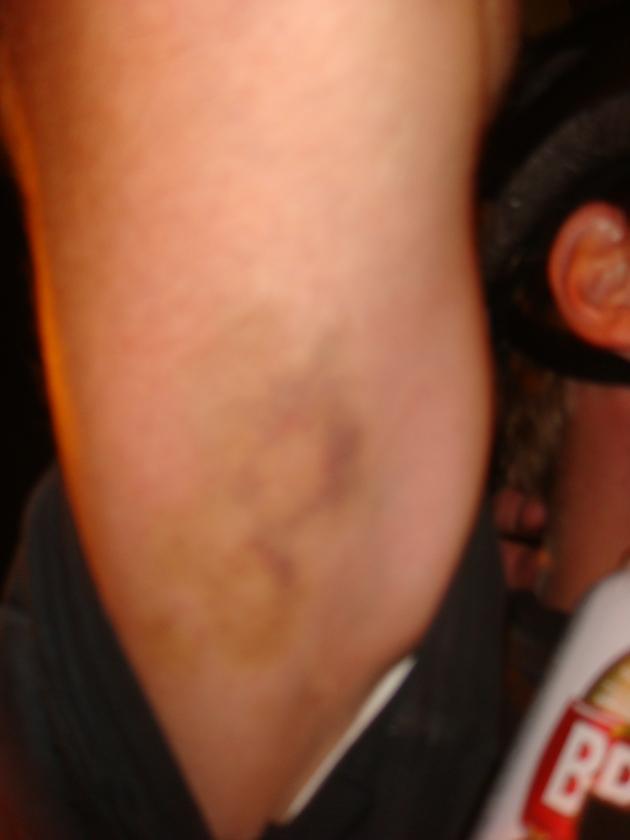 Marcas da agressão ao ciclista.